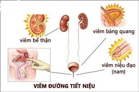 bệnh viêm đường tiết niệu